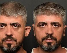 Ears Surgery Otoplasty Mexico