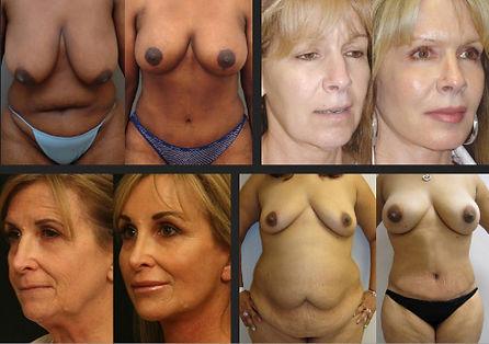 Plastic Surgery Mexico 11