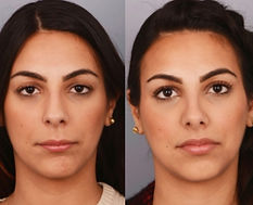 Revision Rhinoplasty Mexico