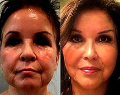 Cost Eyelid Surgery Mexico