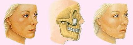 Cheek-implants-incision.jpg