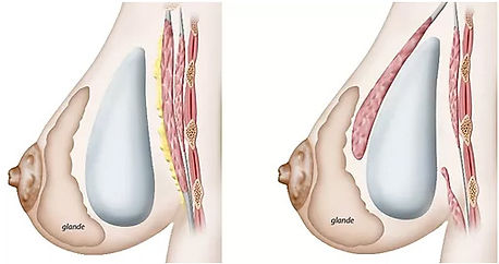 Breast Implants Mexico