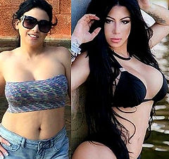all inclusive plastic surgery vacations mexico