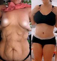 Reviews of Tummy tuck in Mexico