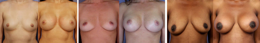 breast implants in mexico