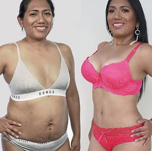 How much is the cheapest tummy tuck