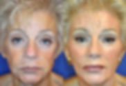 Plastic Surgery Package in Mexico