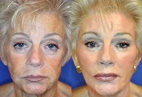 All Inclusive Facelift Package Mexico