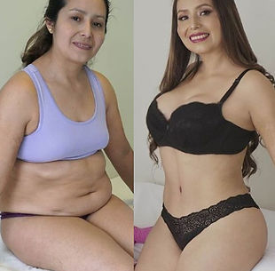 most affordable tummy tuck