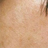 Ottawa | Skin Resurfacing Sunspots after treatment at TEAL