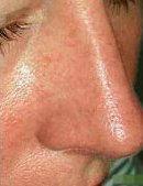 Ottawa spider vein after treatment at TEAL