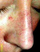 Ottawa spider vein before treatment at TEAL