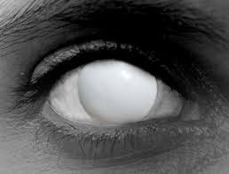 The Blind Eye