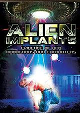 Alien Implants.jpg