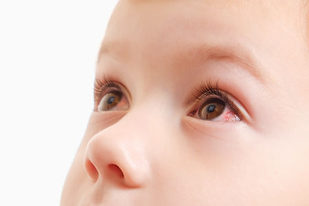 Child conjunctivitis red eye with infect