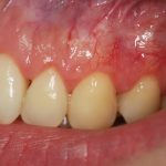 Periodontologia-1-150x150.jpg