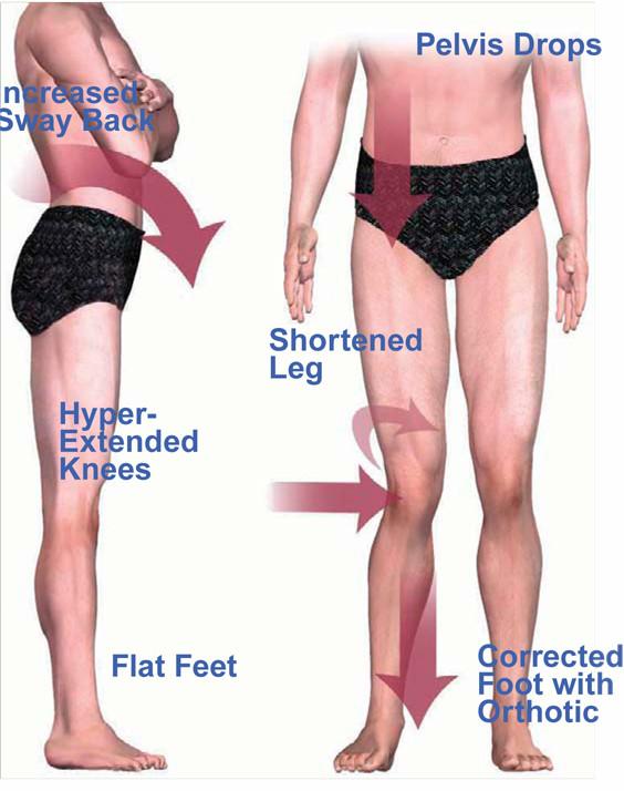 Why Shin Splints.jpg