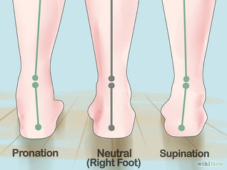 The dreaded and evil - FLAT FOOT SYNDROM