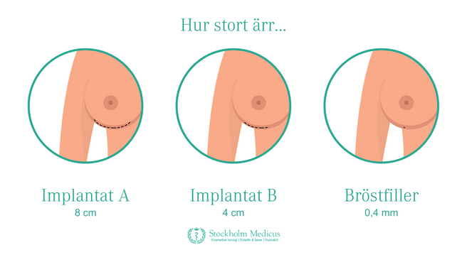 Bröstförstoring utan ärr