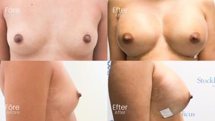 Bröstfiller 500 CC