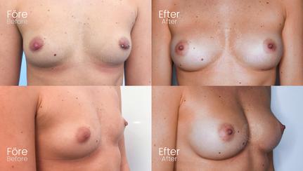 Bröstfiller 700 CC