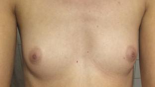 Bröstförstoring Med Vattenbaserad Fillers