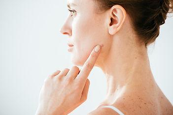 Step 1 - Mole or Lesion Identified.jpg