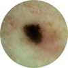 Dermatoscopic Photo View.png