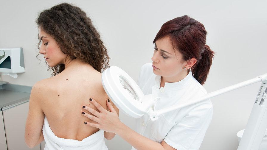 Skin Cancer Screening at Advanced Vitality Brampton