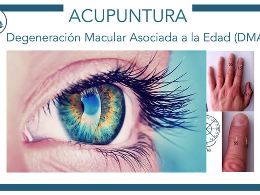 Micro-acupuntura en la Degeneración Macular Asociada con la edad (DMAE)