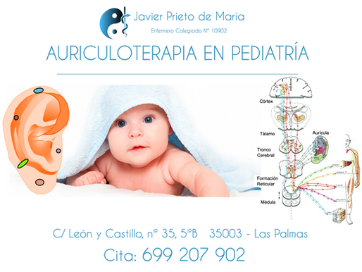 Auriculoterapia en pediatría