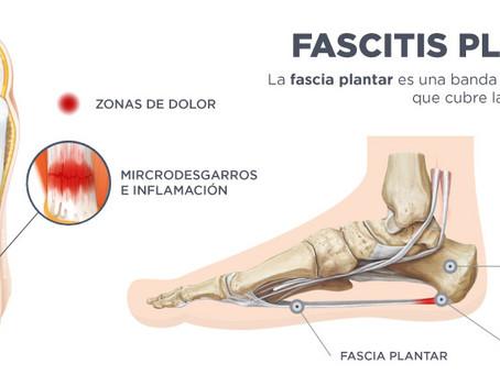 Tratamiento Acupuntural de algias de la planta del pie por puntos locales