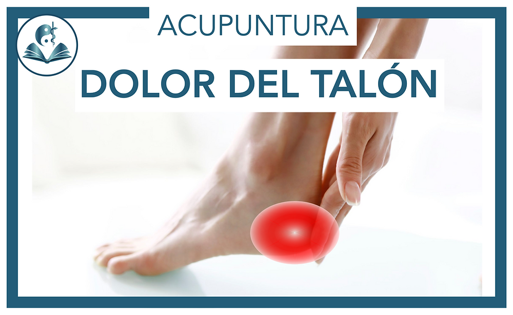 La acupuntura puede aliviar o eliminar los dolores del talón