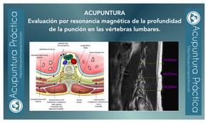 Evaluación por resonancia magnética de la profundidad de la punción en las vértebras lumbares.