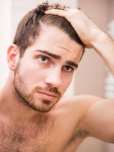 male-hair-loss.jpg