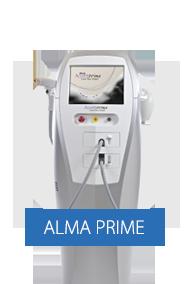 alma-prime.png