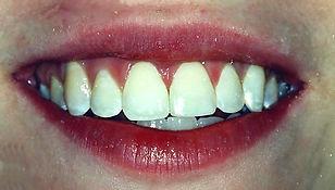 Broken Tooth - After.jpg