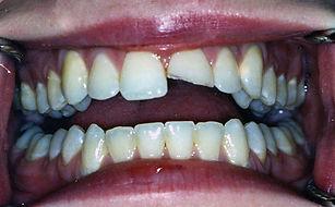 Broken Tooth - Before.jpg