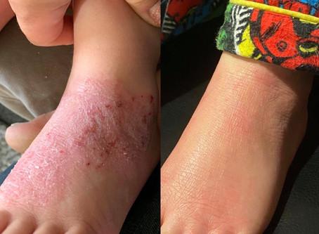 How to treat Eczema holistically