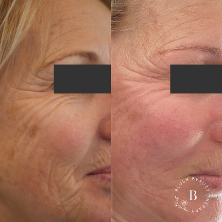 Ageing and skin health