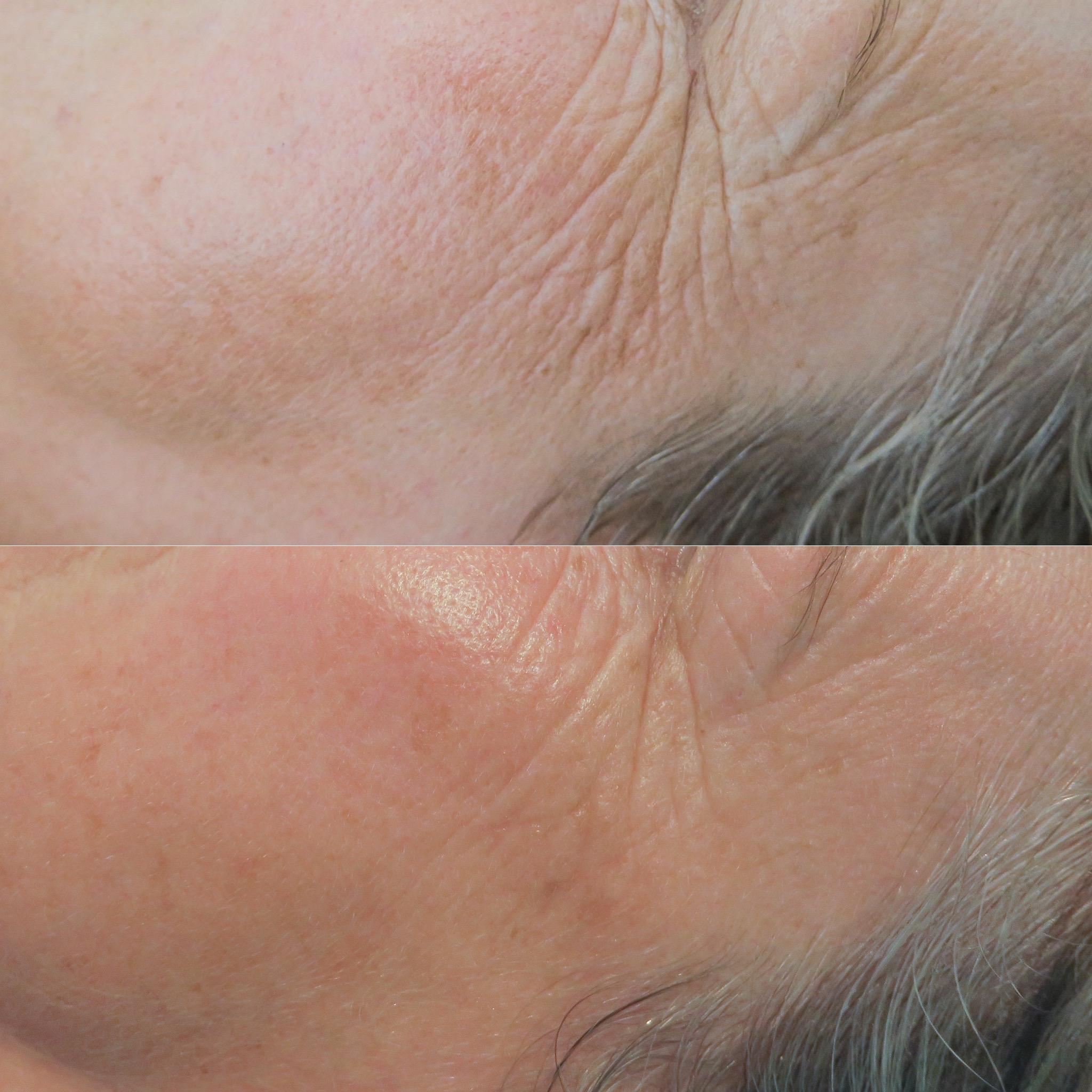 Wrinkles and skin health