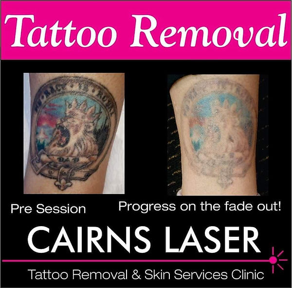 Cairns Tattoo Removal