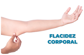 FLACIDEZ-CORPORAL.png