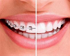 ortodontia-1-1_edited.jpg