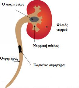 Καρκίνος ουρητήρα.png