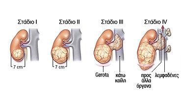 Kαρκίνος νεφρού.jpg