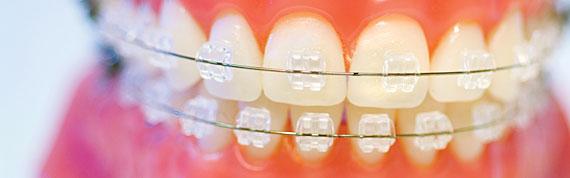 trattamenti ortodontici fissi