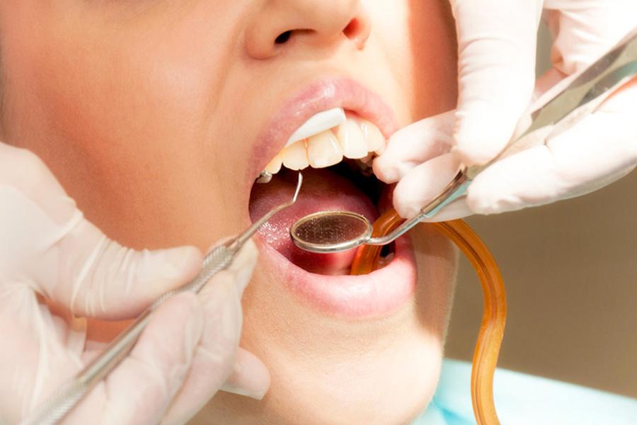 conservativa, endodonzia