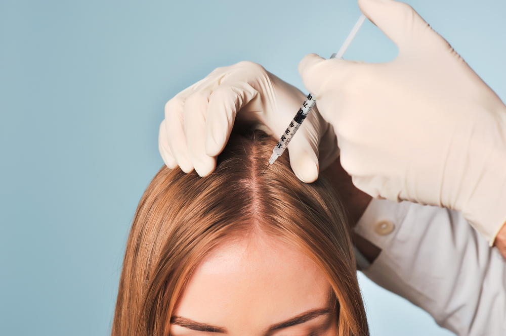 PRP for Hair Loss&Laser Restoration