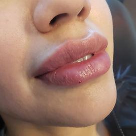 Lakewood Aesthetics lips.jpg